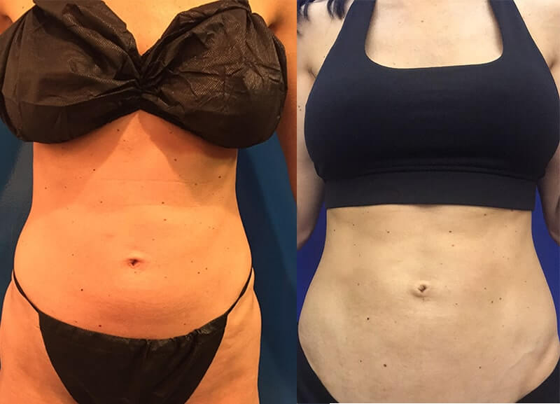 before-after-abs-lipo