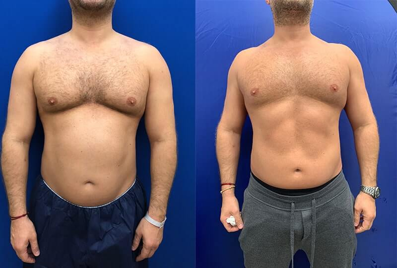 before-and-after-male-chest
