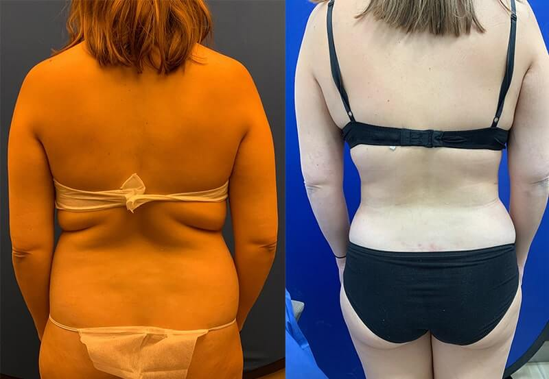 female-before-after-back-lipo