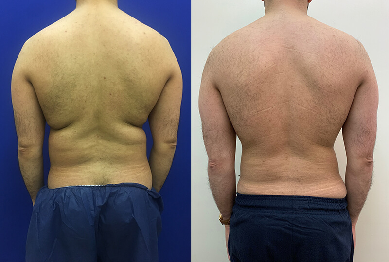 male-back-lipo-before-after