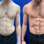 emsculpt-before-after-male-abs