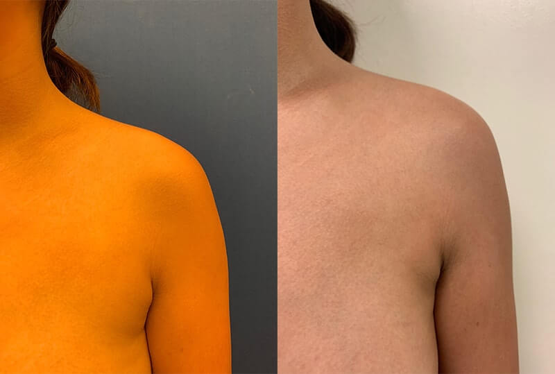 armpit-liposuction-before-after