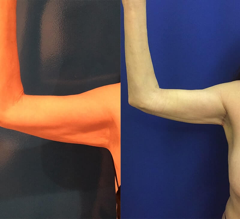 mini-arm-lift-before-after