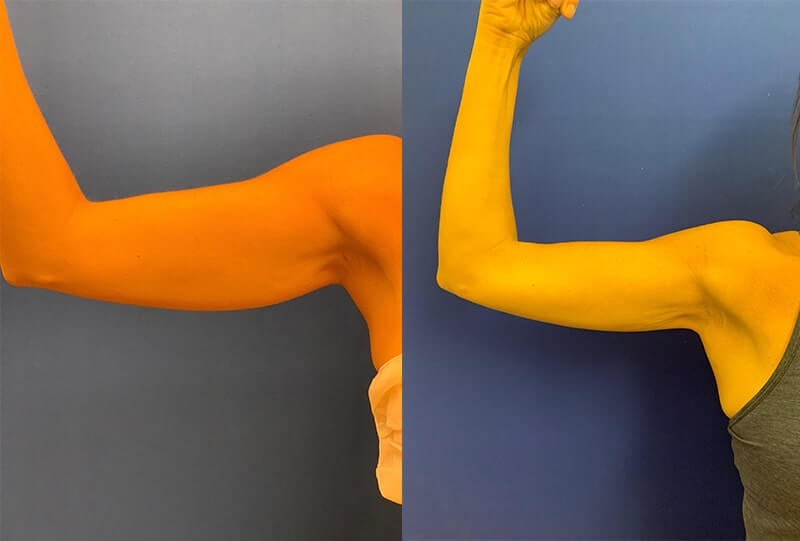before-after-female-arms
