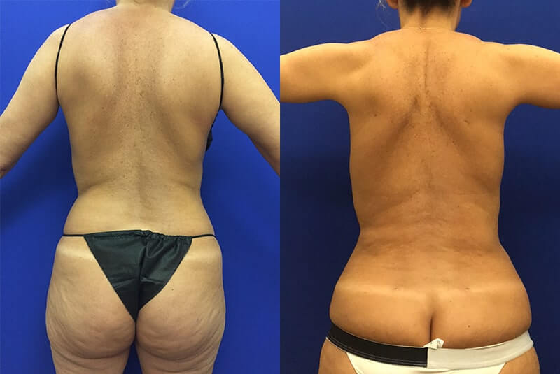 back-lipo-before-after