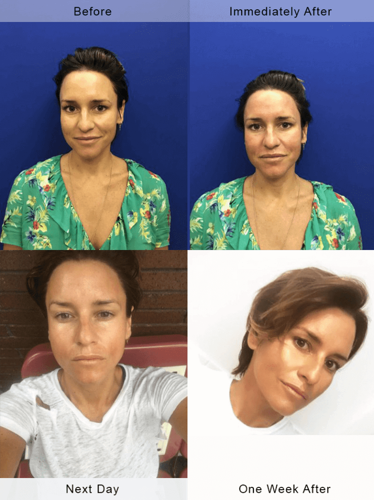 microneedling-before-after