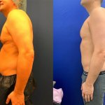 male-lipo-before-after