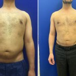 before-after-male-abs-lipo