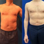 before-after-male-lipo-abs