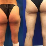 female-leg-lipo-before-after