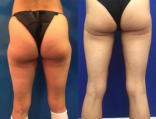Before & After: Thigh Liposuction | Neinstein Plastic Surgery