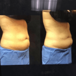 neinstien-coolsculpting-revision