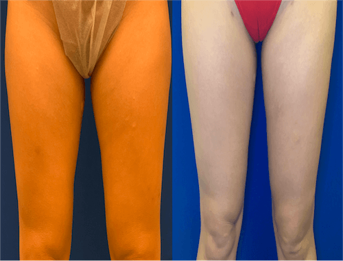 inner-thigh-before-after