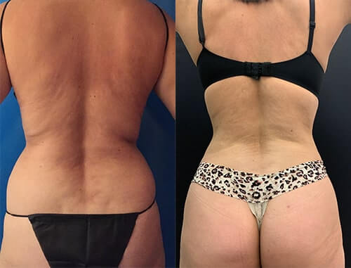 before-after-female-back-lipo