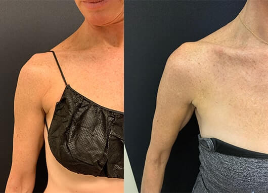 before-after-liposuction-armpit-female
