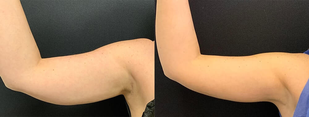 female-arm-liposuction-before-after