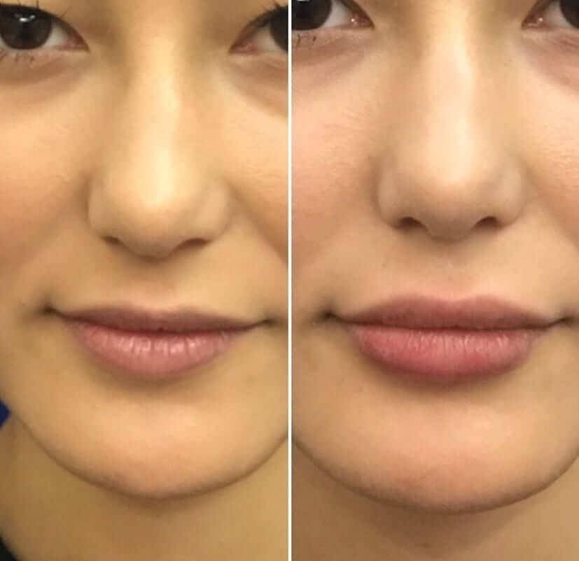 lip-filler-female-before-after