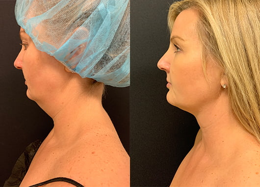 before-after-liposuction-neck-female