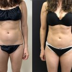 female-before-after-abdomen-waist-liposuction