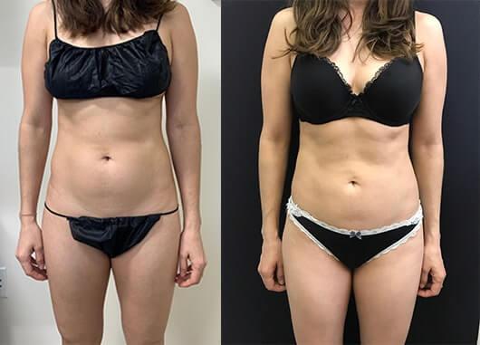 female-before-after-abdomen-waist-liposuction
