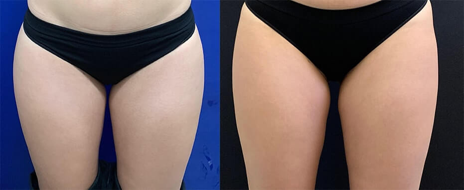 female-inner-thighs-liposuction