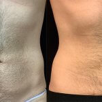 male-abdomen-plasma-liposuction-before-after