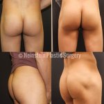 before-after-emsculpt-male-butt