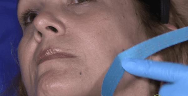 face-lift-patient