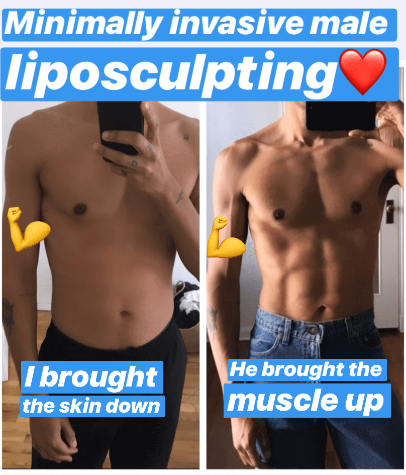 minimally-invasive-male-liposculpting