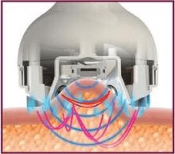 facial-rejuvination-machine
