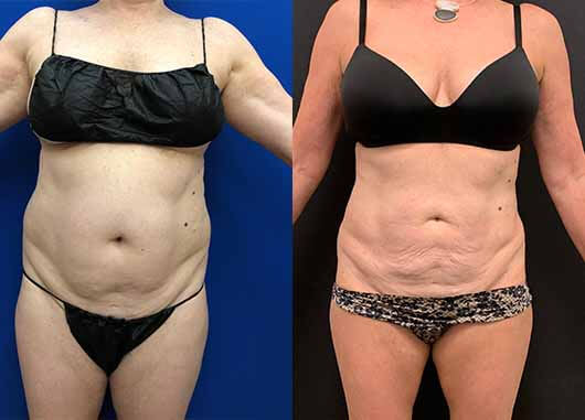 before-after-female-liposuction-abdomen