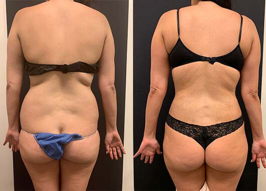 before-after-female-back-waist-liposuction