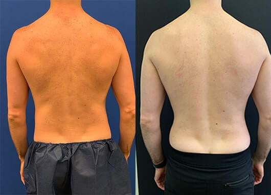 before-after-male-back-liposuction