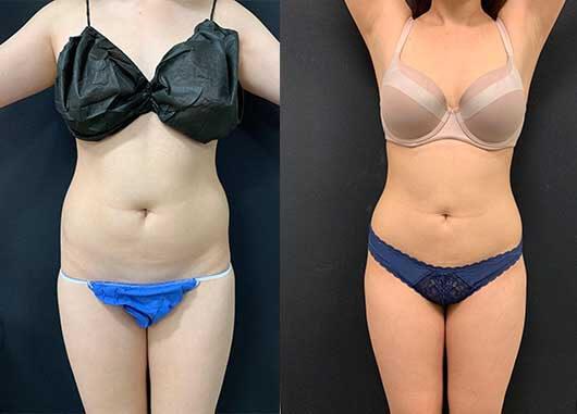 Abs & Waist Liposuction Before & After | Neinstein Plastic