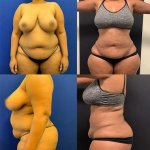 before-after-female-abdomen-waist-liposuction