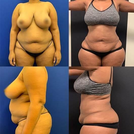 before-after-female-abdomen-waist-liposuction