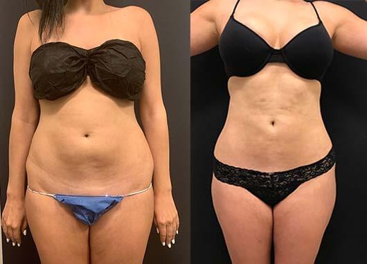 Abs Waist Liposuction Before After Neinstein Plastic Surgery