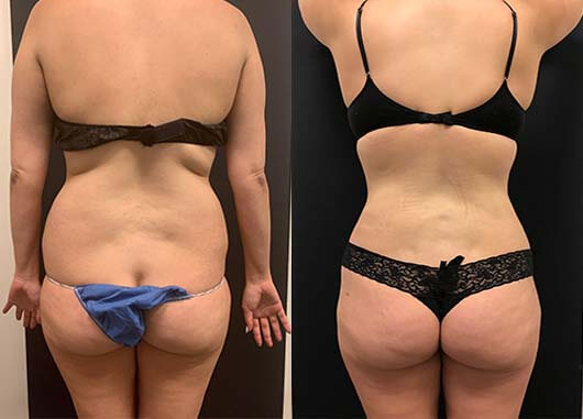 before-after-female-back-liposuction