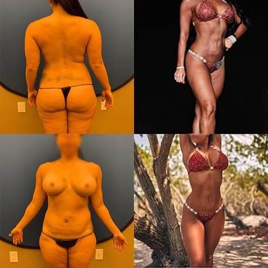 before-after-abdomen-waist-breast-liposuction-augmentation