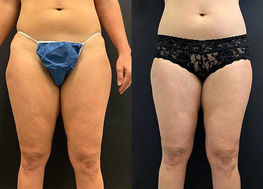 46069769200880 Before & After: Thigh Liposuction | Neinstein Plastic Surgery