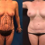 before-after-mommy-make-over-liposuction