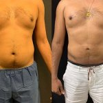 before-after-male-abdomen-liposuction