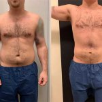before-after-male-abdomen-waist-liposuction