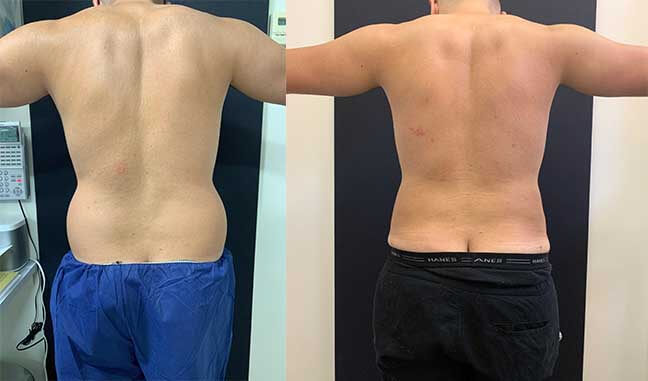 before-after-male-waist-liposuction