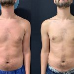 before-after-male-breast-reduction