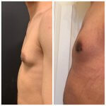 gynecomastia-before-after