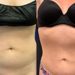 before-after-female-abdomen-liposuction