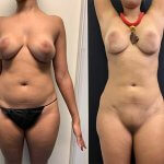 before-after-abdomen-liposuction