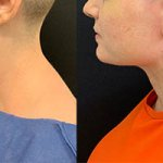 before-after-female-chin-liposuction