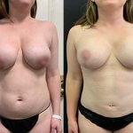 before-after-female-implant-replacement-breast-lift